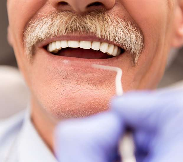 Astoria Adjusting to New Dentures
