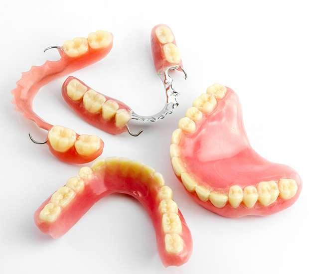 Astoria What Do I Do If I Damage My Dentures