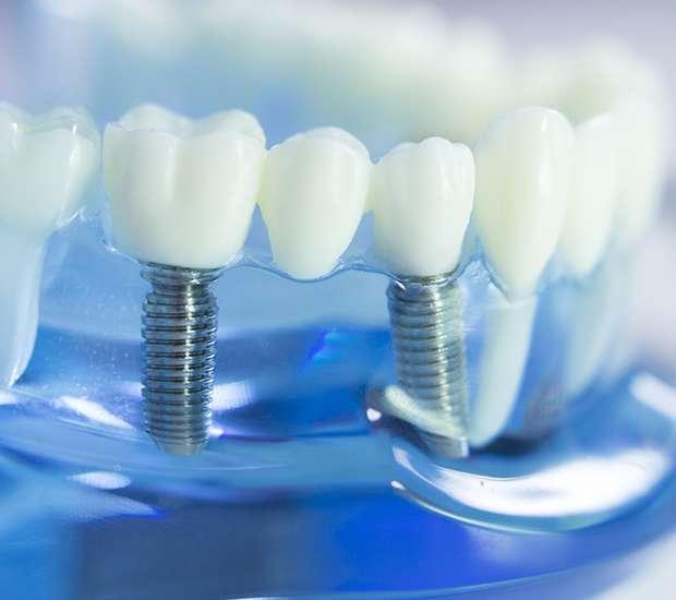 Astoria Dental Implants