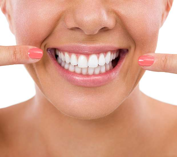 Astoria What Is Gum Contouring & Reshaping