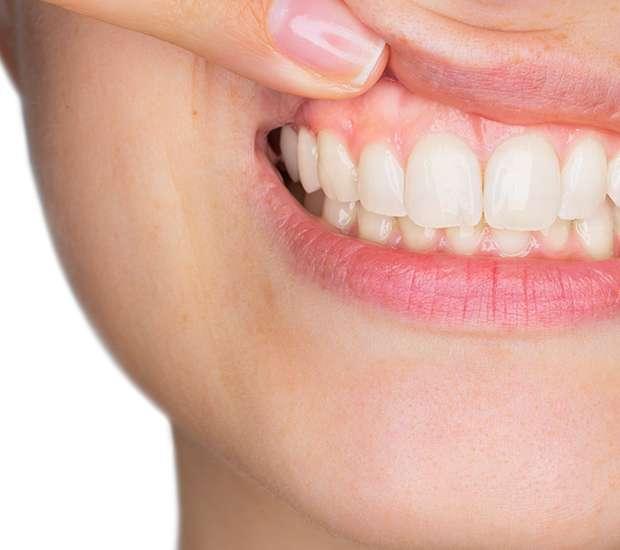 Astoria Gum Disease