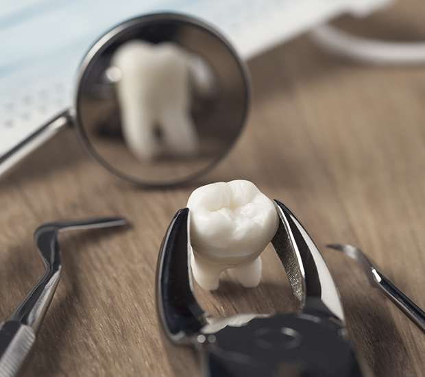 Astoria When Is a Tooth Extraction Necessary